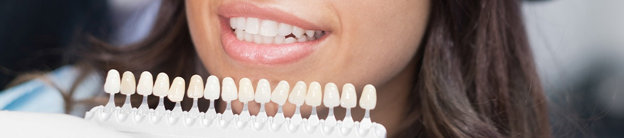 Closeup of smile compared with tooth color chart